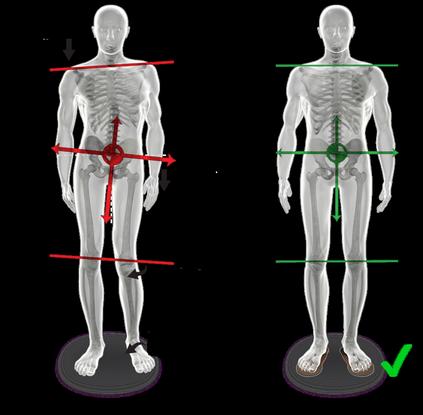 nacrt drzanja tela